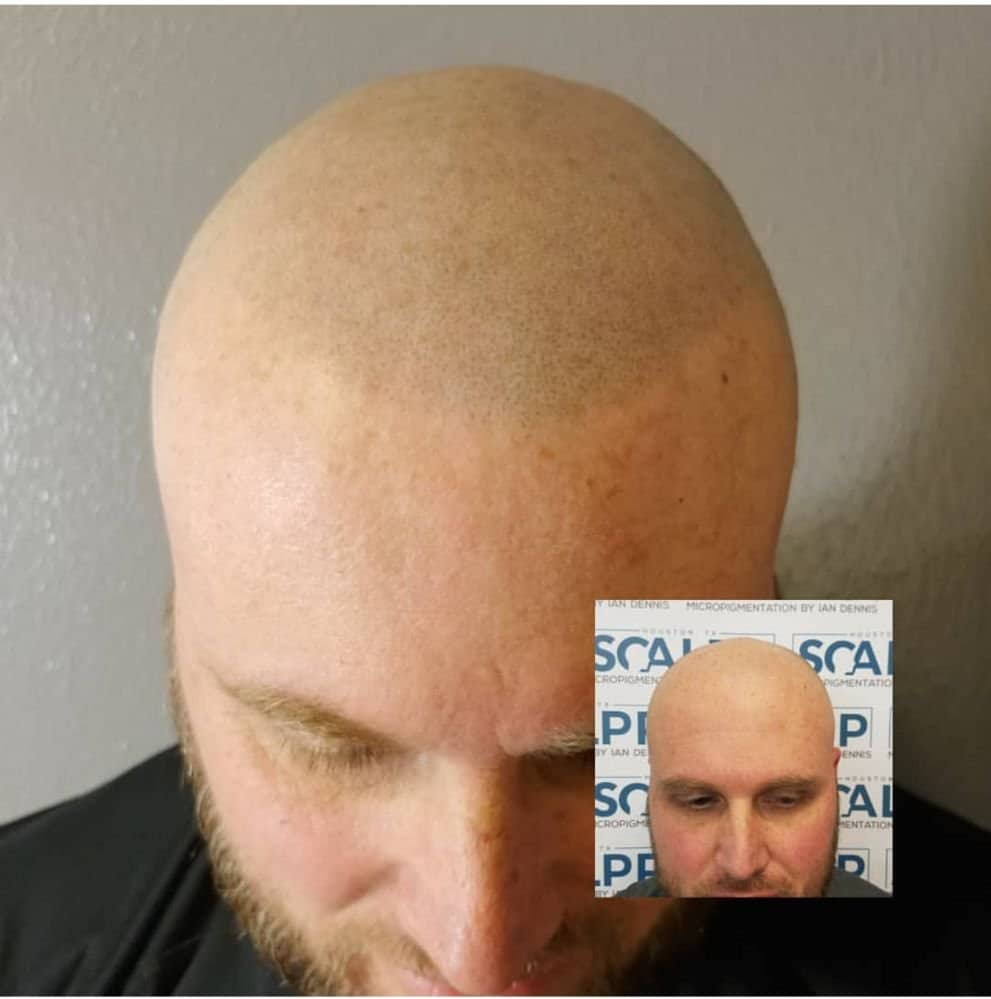 Scalp Micropigmentation doesn\'t work for blonde / red haired clients ...
