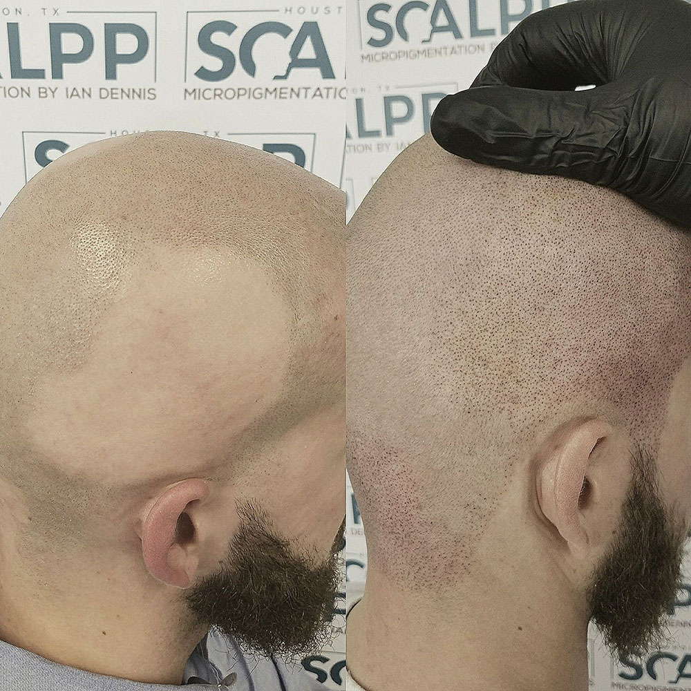 Before and after treatment at our Houston alopecia clinic