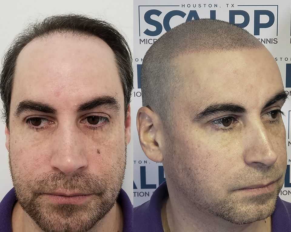 Most Natural Hair Tattoo In Texas Houston Austin S 1 Hair Loss Clinic They are best alternatives to cover baldness or any other hair loss problem. most natural hair tattoo in texas