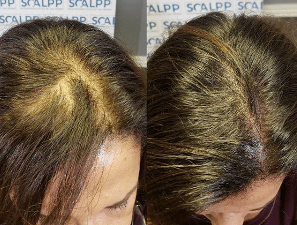 Scalp Micropigmentation For Women Hairloss And Thinning Hair Houston Texas